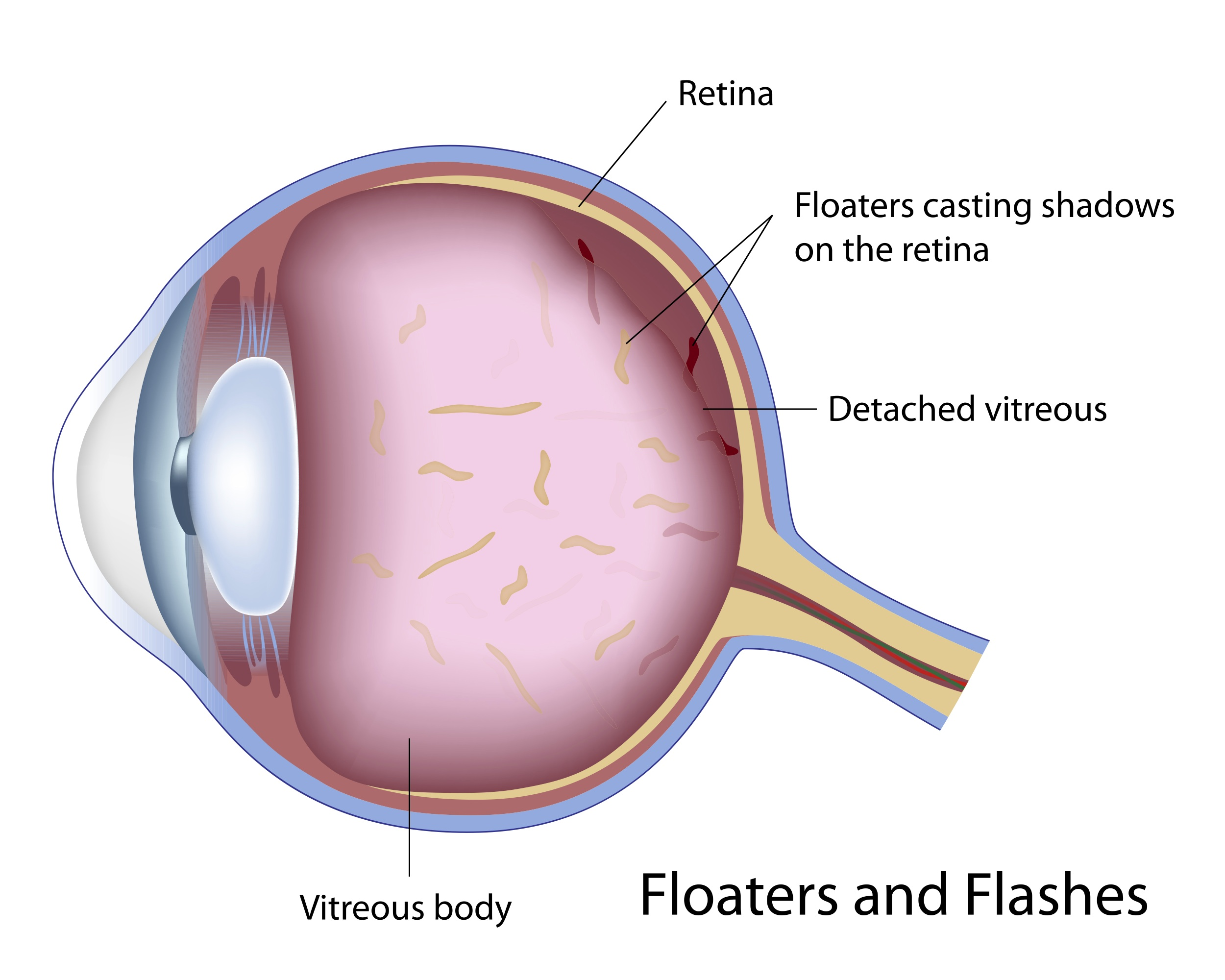 Post image for Natural Vision Remedy for Eye Floaters